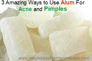 3 Ways To Use Alum For Pimples And Acne Treatment
